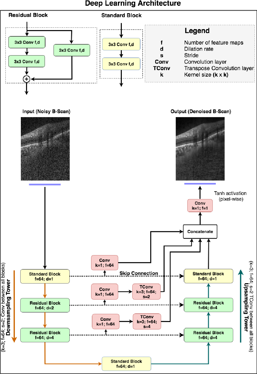 Figure 1 for A Deep Learning Approach to Denoise Optical Coherence Tomography Images of the Optic Nerve Head