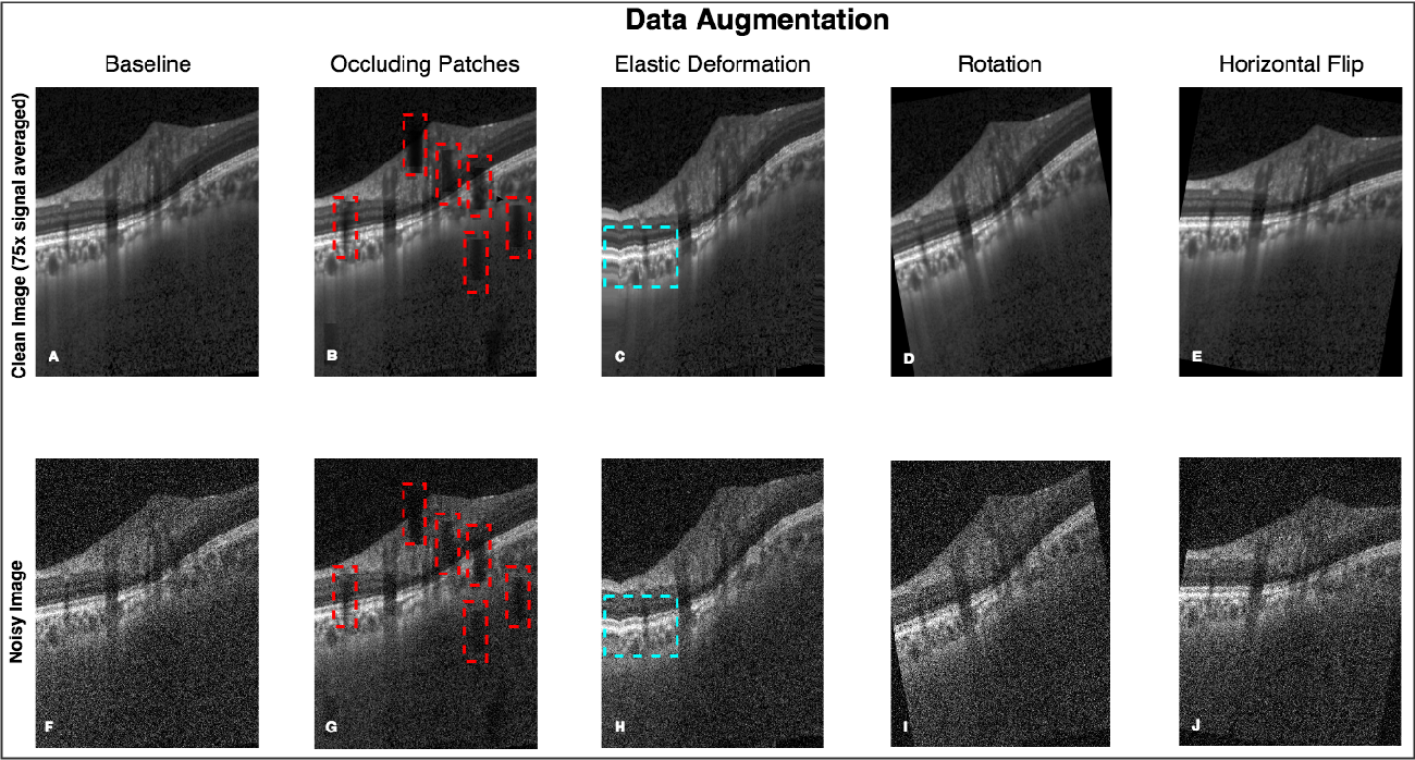 Figure 2 for A Deep Learning Approach to Denoise Optical Coherence Tomography Images of the Optic Nerve Head