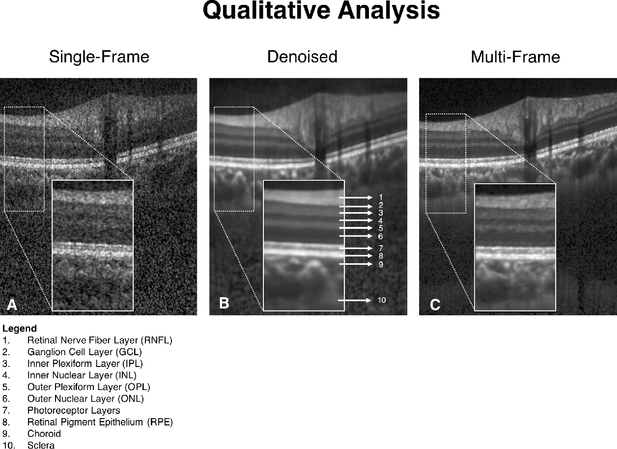 Figure 3 for A Deep Learning Approach to Denoise Optical Coherence Tomography Images of the Optic Nerve Head