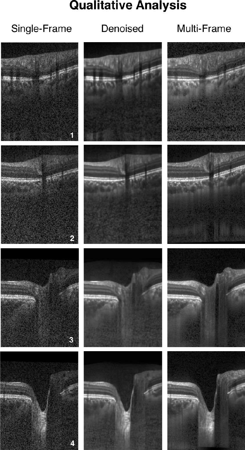 Figure 4 for A Deep Learning Approach to Denoise Optical Coherence Tomography Images of the Optic Nerve Head