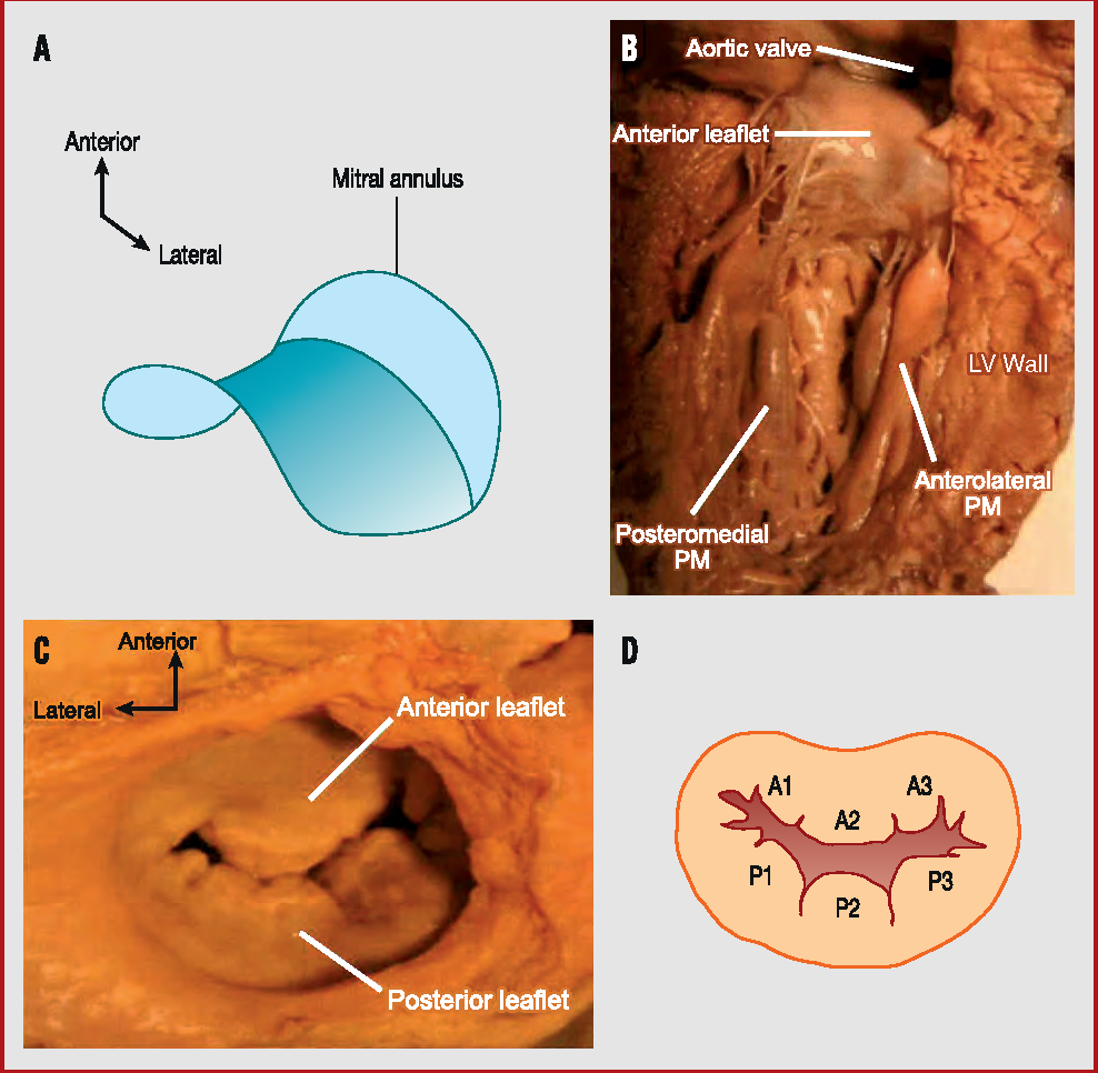 Figure 1 from Congenital malformations of the mitral valve ...