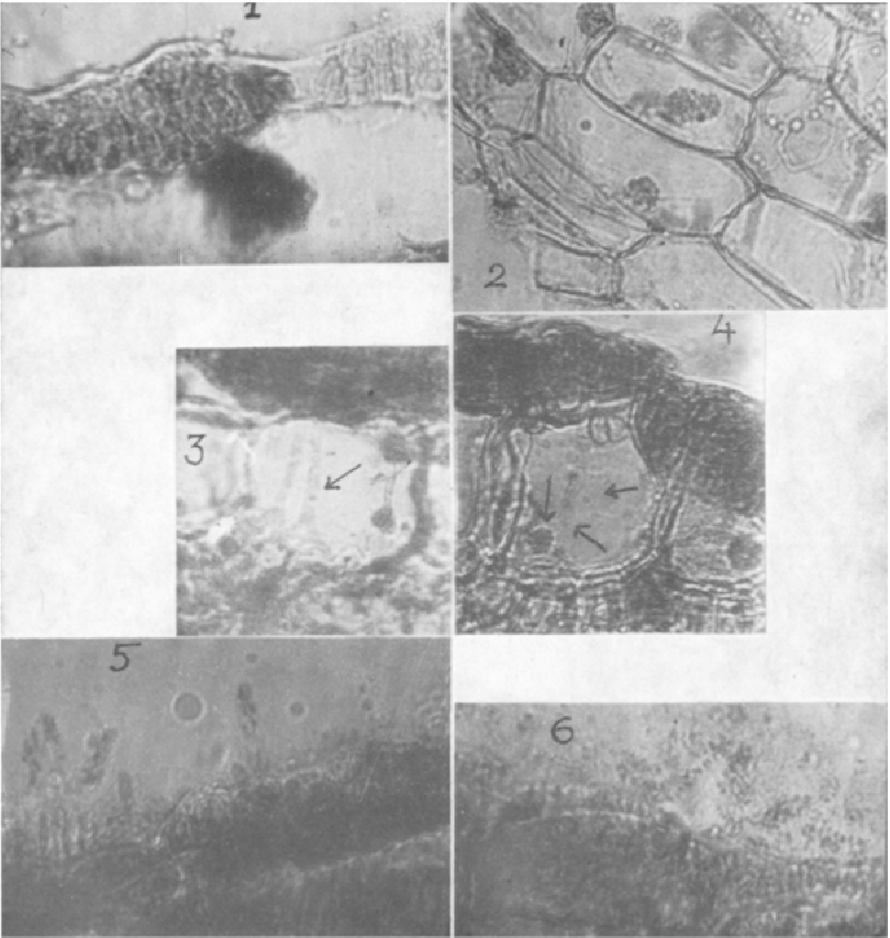 Studies on taphrina maculans butler inciting leaf spot of turmeric figure 1 altavistaventures Choice Image