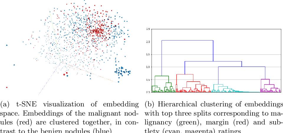 Figure 3 for Nodule2vec: a 3D Deep Learning System for Pulmonary Nodule Retrieval Using Semantic Representation