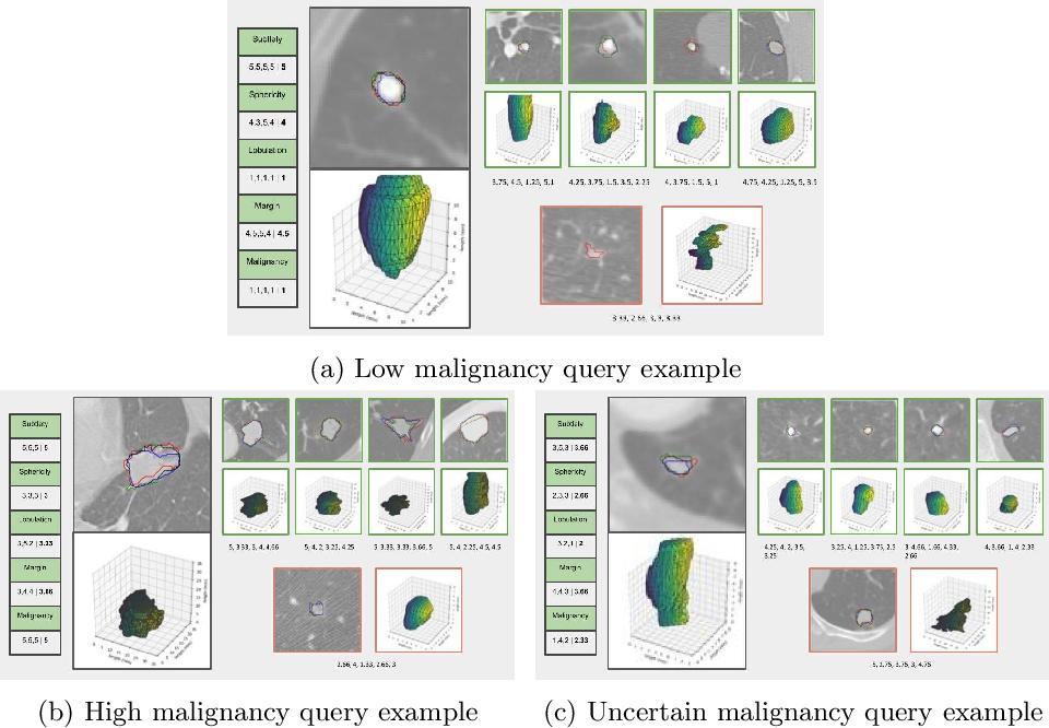 Figure 4 for Nodule2vec: a 3D Deep Learning System for Pulmonary Nodule Retrieval Using Semantic Representation