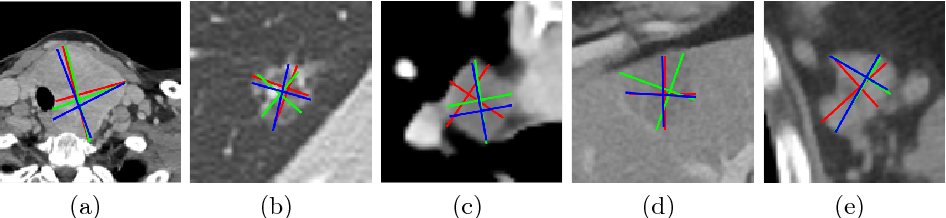 Figure 1 for Semi-Automatic RECIST Labeling on CT Scans with Cascaded Convolutional Neural Networks