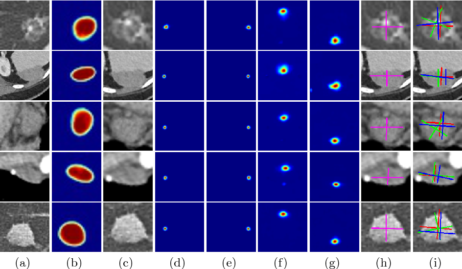 Figure 4 for Semi-Automatic RECIST Labeling on CT Scans with Cascaded Convolutional Neural Networks
