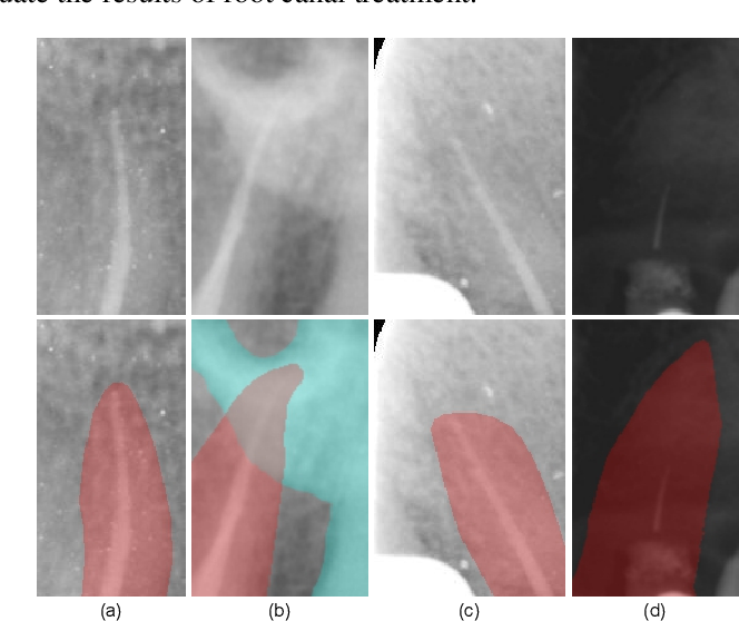 Figure 1 for Anatomy-Guided Parallel Bottleneck Transformer Network for Automated Evaluation of Root Canal Therapy