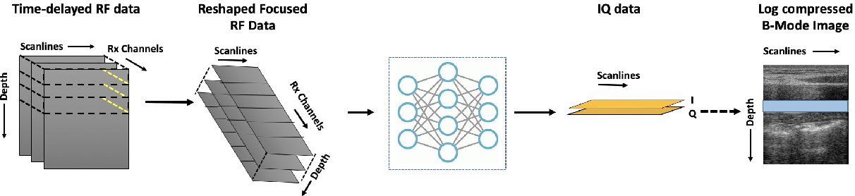 Figure 3 for Adaptive and Compressive Beamforming using Deep Learning for Medical Ultrasound
