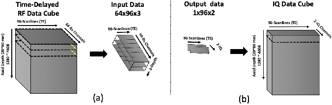 Figure 4 for Adaptive and Compressive Beamforming using Deep Learning for Medical Ultrasound