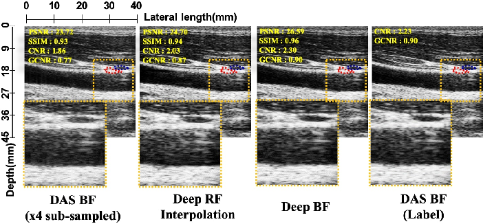 Figure 2 for Adaptive and Compressive Beamforming using Deep Learning for Medical Ultrasound