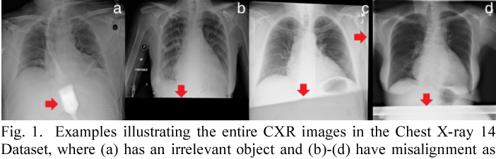 Figure 1 for SDFN: Segmentation-based Deep Fusion Network for Thoracic Disease Classification in Chest X-ray Images