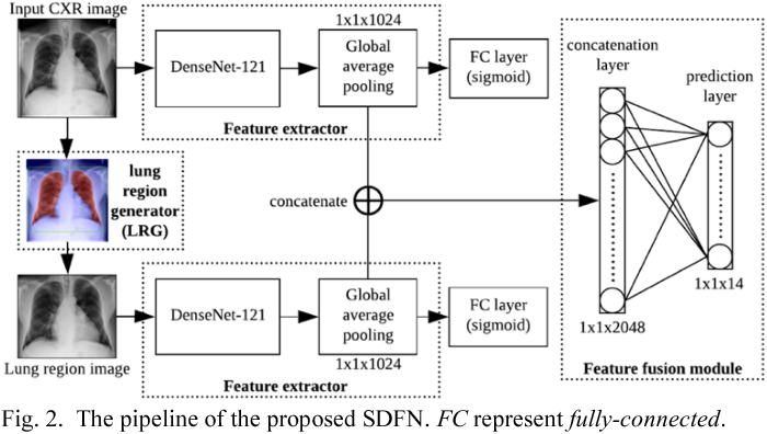 Figure 2 for SDFN: Segmentation-based Deep Fusion Network for Thoracic Disease Classification in Chest X-ray Images