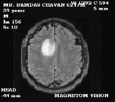 Figure 1 from Brain Tumour Extraction from MRI Images Using MATLAB