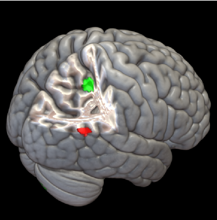 Figure 2 for Nonlinear functional mapping of the human brain