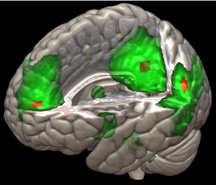Figure 1 for Nonlinear functional mapping of the human brain