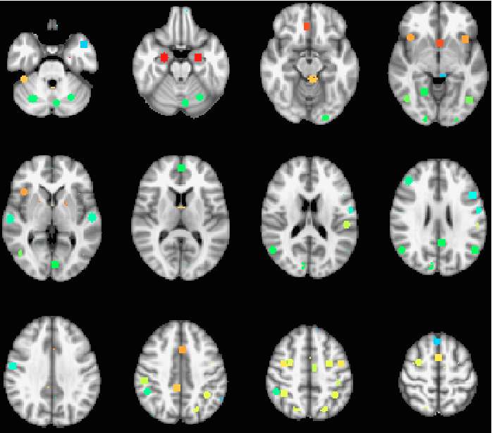 Figure 3 for Nonlinear functional mapping of the human brain