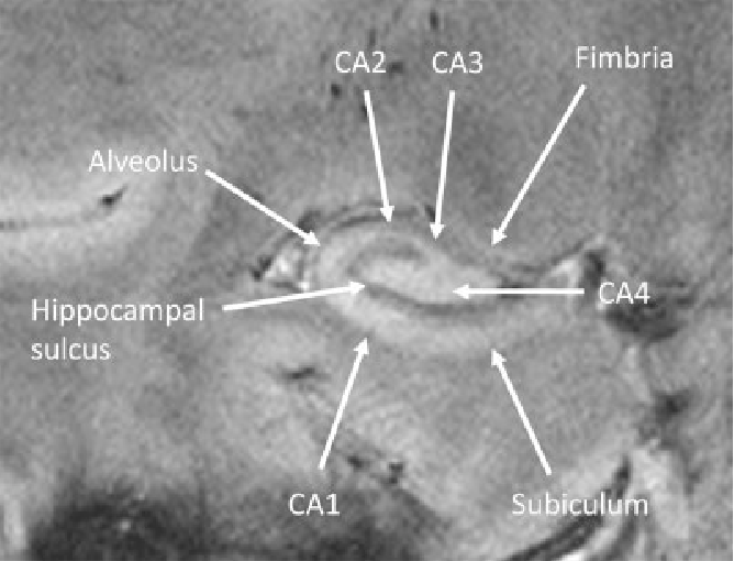 Figure 2 From The Human Hippocampus At 7 T In Vivo Mri Semantic