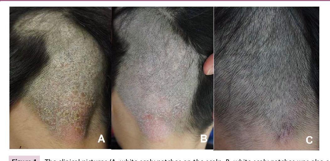 Figure 1 From A Case Of Localized Scalp Psoriasistriggered By