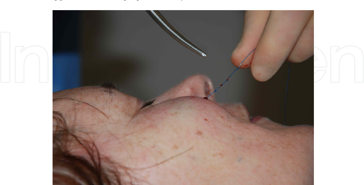 PDF] Minimally Invasive Face and Neck Lift Using Silhouette Coned
