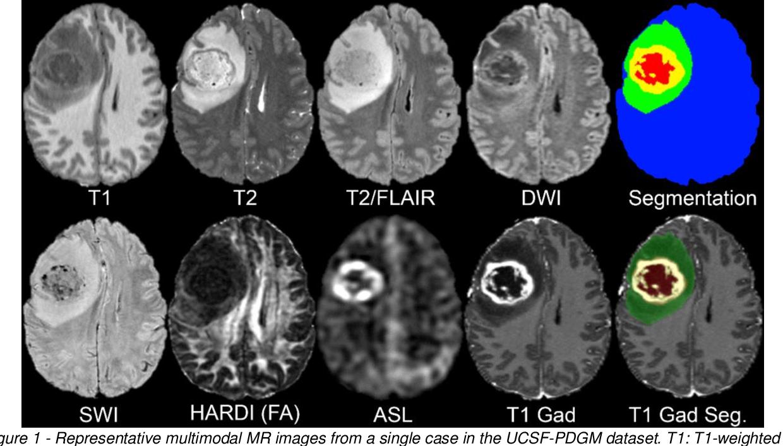 Figure 2 for The University of California San Francisco Preoperative Diffuse Glioma (UCSF-PDGM) MRI Dataset
