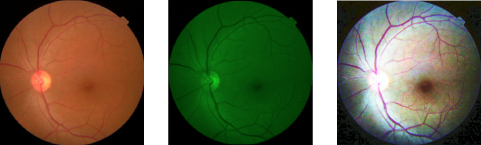 Figure 2 for Classification of Diabetic Retinopathy Severity in Fundus Images with DenseNet121 and ResNet50