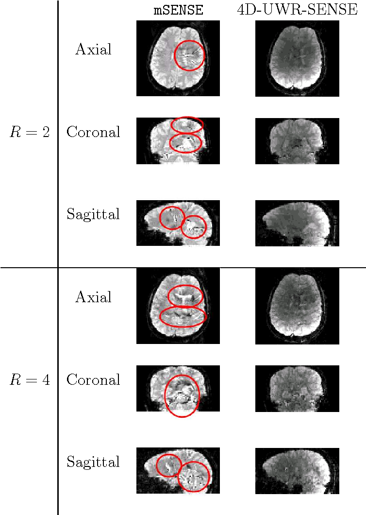 Figure 3 for 4D Wavelet-Based Regularization for Parallel MRI Reconstruction: Impact on Subject and Group-Levels Statistical Sensitivity in fMRI