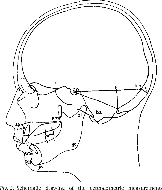 How Does Occipitalization Influence The Dimensions Of The Cranium