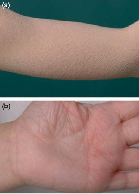 Figure 1 Clinical hallmarks of ichthyosis vulgaris: (a) diffuse light grey scaling on the arm; (b) palmar hyperlinearity.