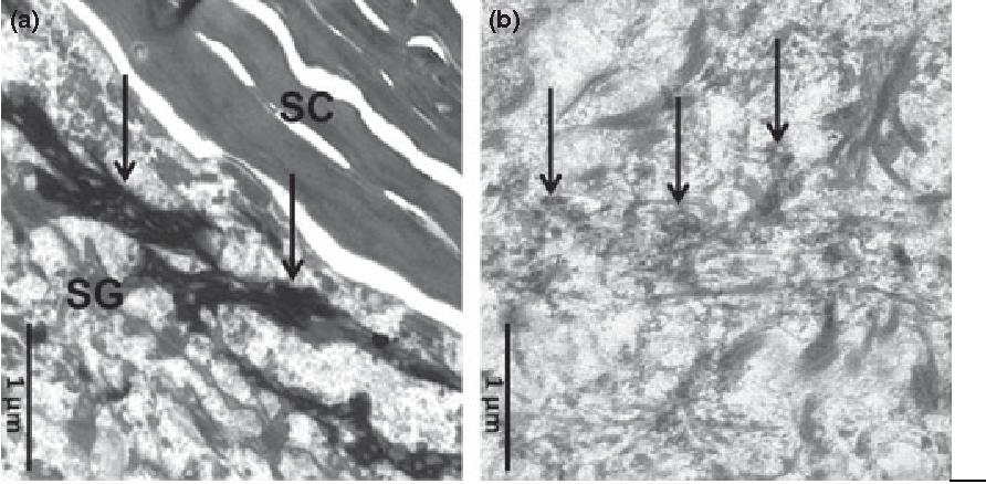 Figure 2 Electron microscopy: (a) normal keratohyalin in normal skin (black arrows). (b) typical 'crumbly' keratohyalin granules in a homozygous FLG / subject (patient ID 10) (black arrows). SG, stratum granulosum; SC, stratum corneum.