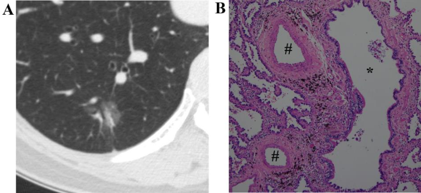 Fig. 3 A 61-year-old woman with an invasive adenocarcinoma, lepidic predominant with papillary