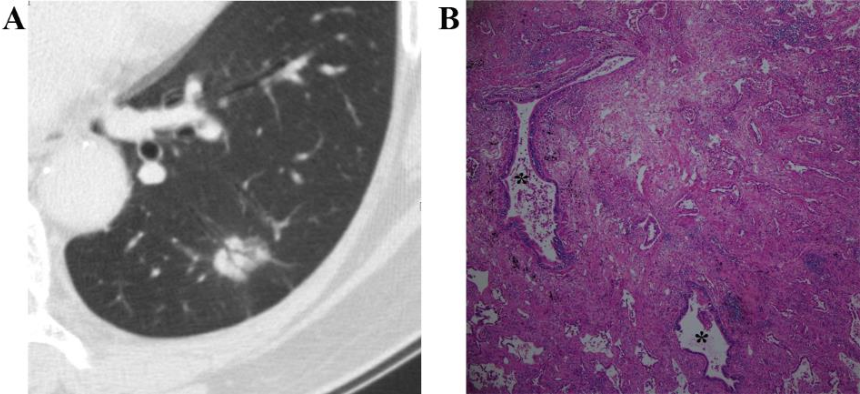 Fig. 6 A 60-year-old woman with an invasive adenocarcinoma, acinar predominant with papillary