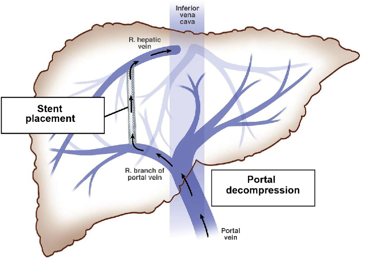 Tips Hepatic Portal Vein Diagram - Block And Schematic Diagrams •