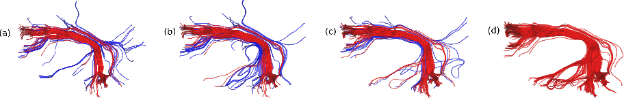 Figure 2 for Comparison of Distances for Supervised Segmentation of White Matter Tractography