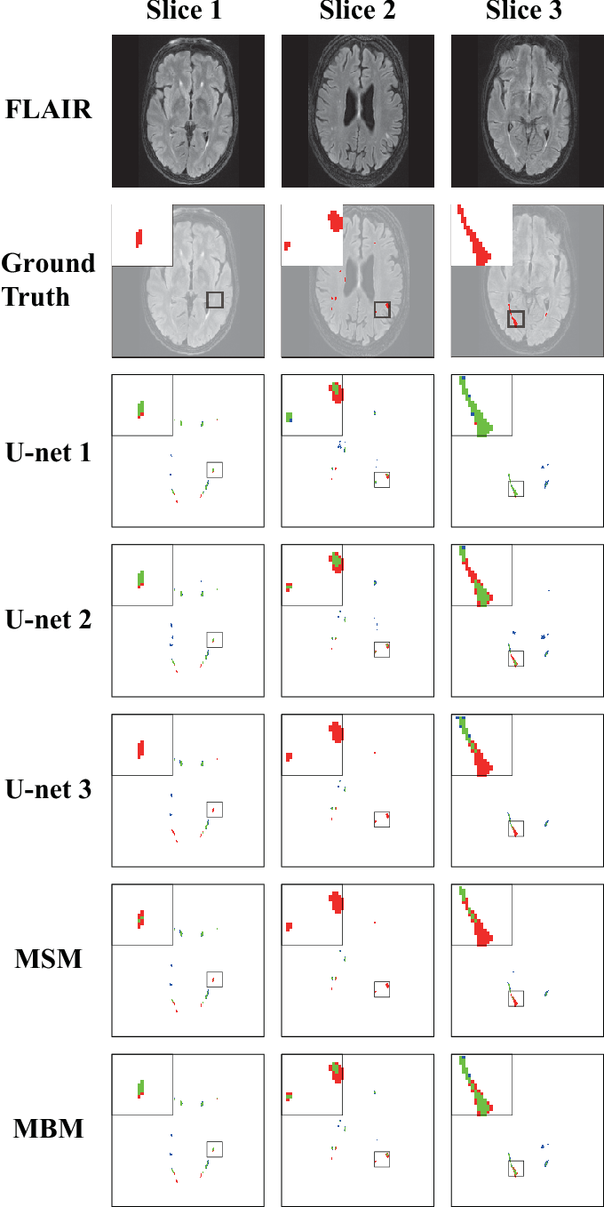 Figure 3 for A post-processing method to improve the white matter hyperintensity segmentation accuracy for randomly-initialized U-net