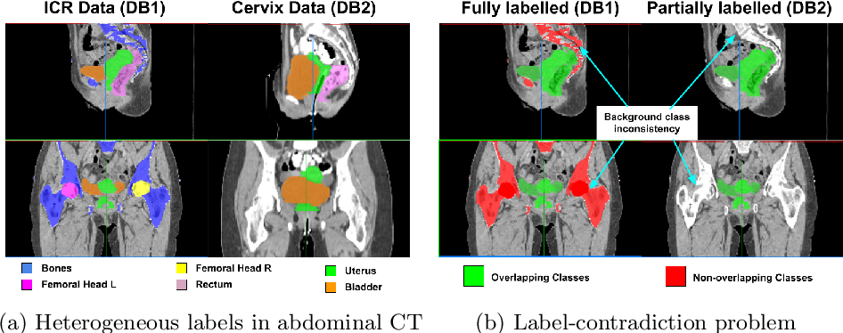 Figure 1 for Learning from Partially Overlapping Labels: Image Segmentation under Annotation Shift