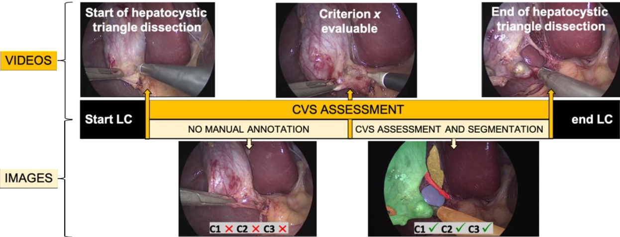 Figure 3 for Surgical data science for safe cholecystectomy: a protocol for segmentation of hepatocystic anatomy and assessment of the critical view of safety