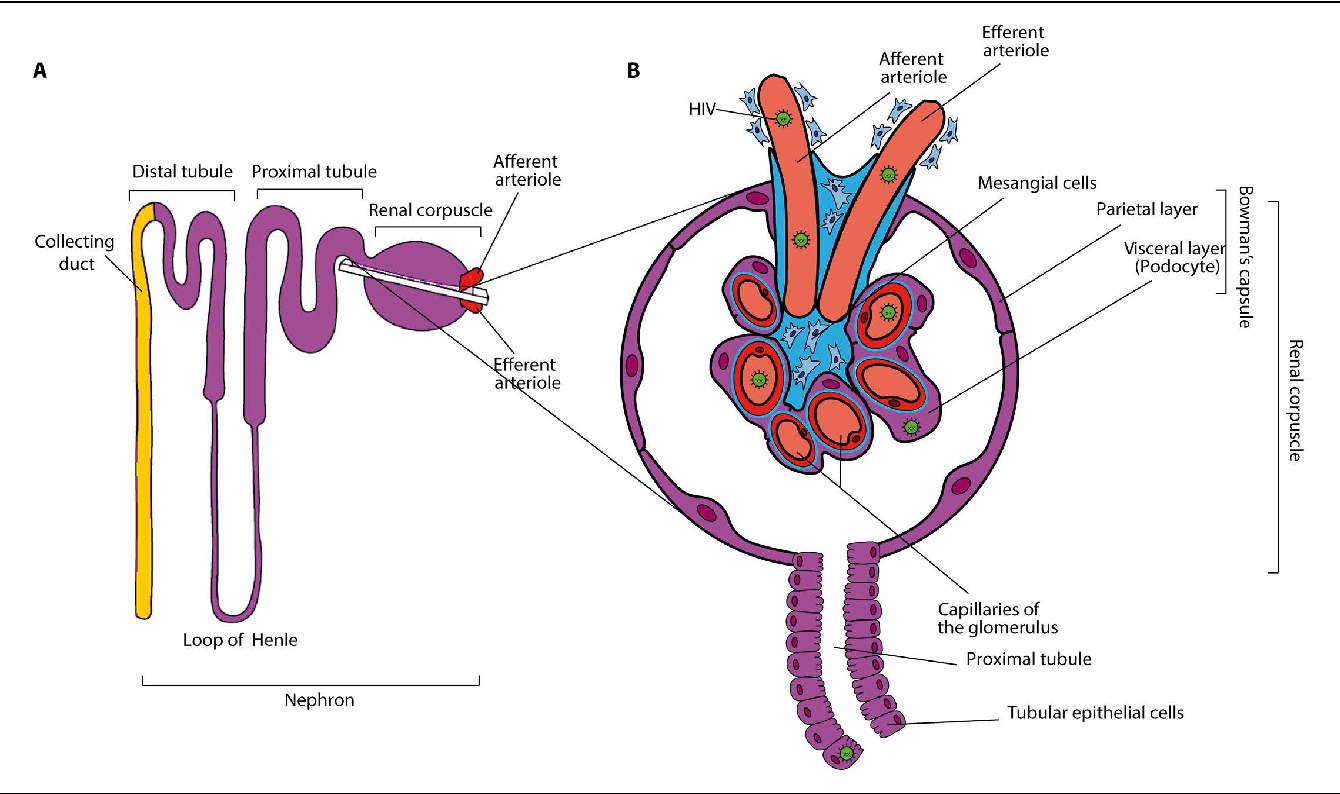 Figure 1 from Risk factors in the HIV population Traditional CKD ...