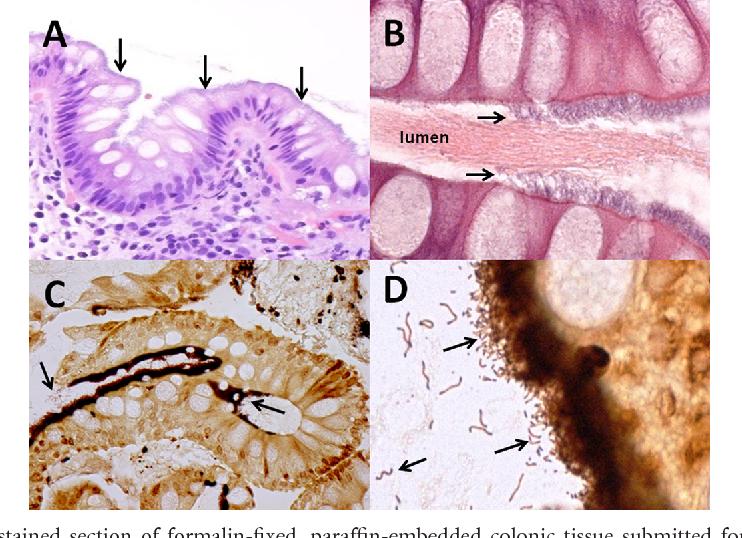 Figure 1 from Photo Quiz: False Intestinal Brush Border  Intestinal