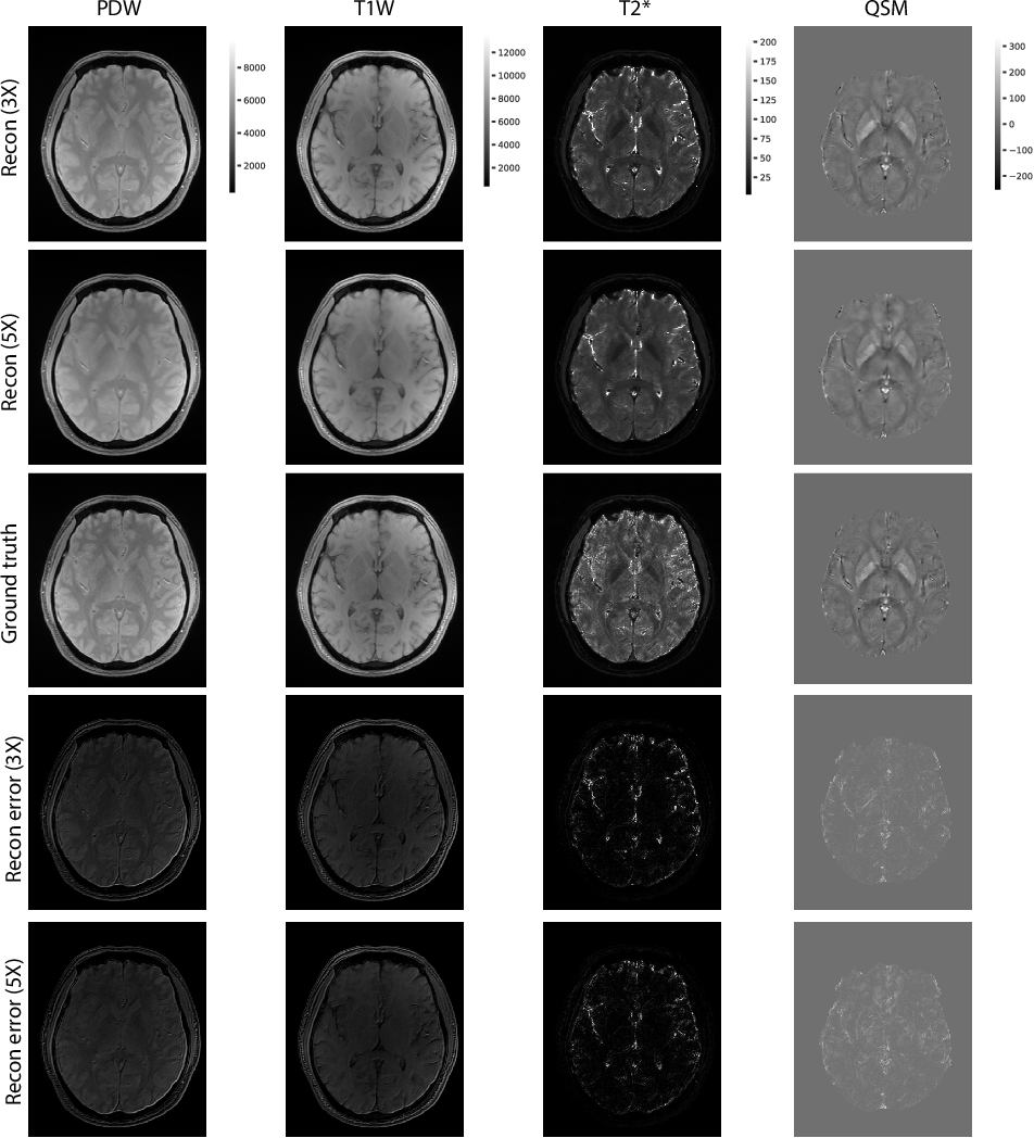 Figure 4 for Accelerating 3D MULTIPLEX MRI Reconstruction with Deep Learning