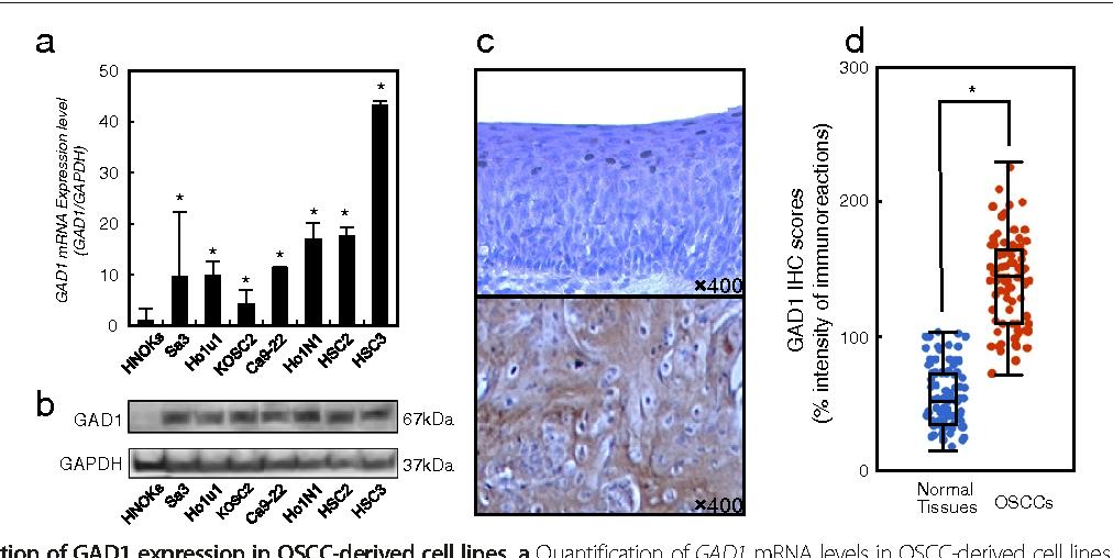 Glutamate acid decarboxylase 1 promotes metastasis of human