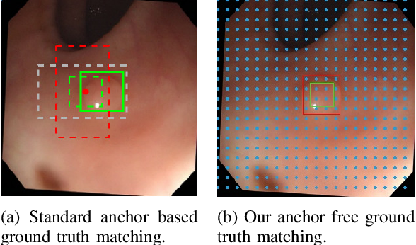 Figure 3 for AFP-Net: Realtime Anchor-Free Polyp Detection in Colonoscopy