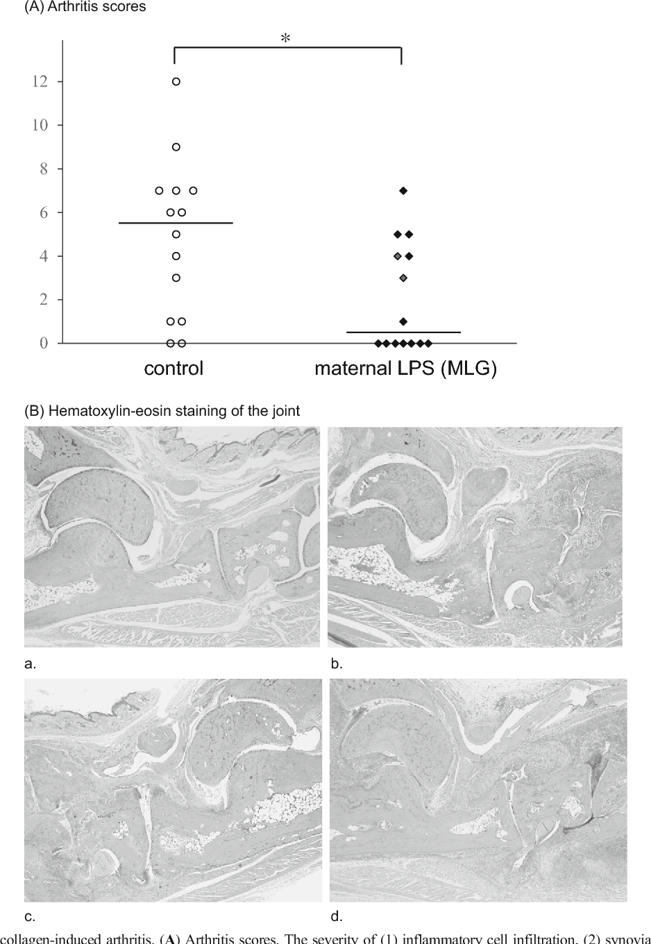 How Severe Maternal Inflammation Can >> The Influence Of Lps Induced Maternal Inflammation On Postnatal