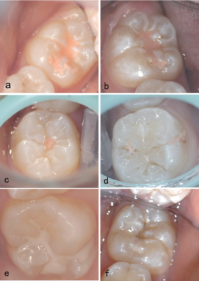 Figure 2 from Clinical comparison of Fuji VII and a resin sealant in