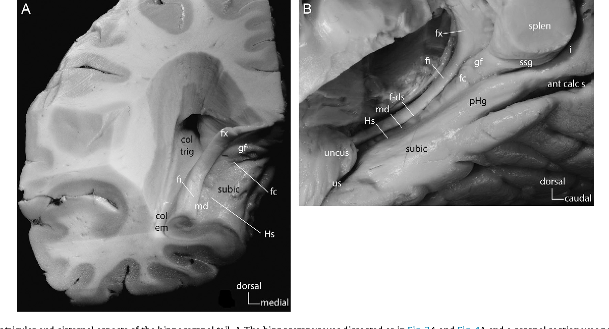 Figure 6 From Surgical Anatomy Of The Hippocampus Semantic Scholar