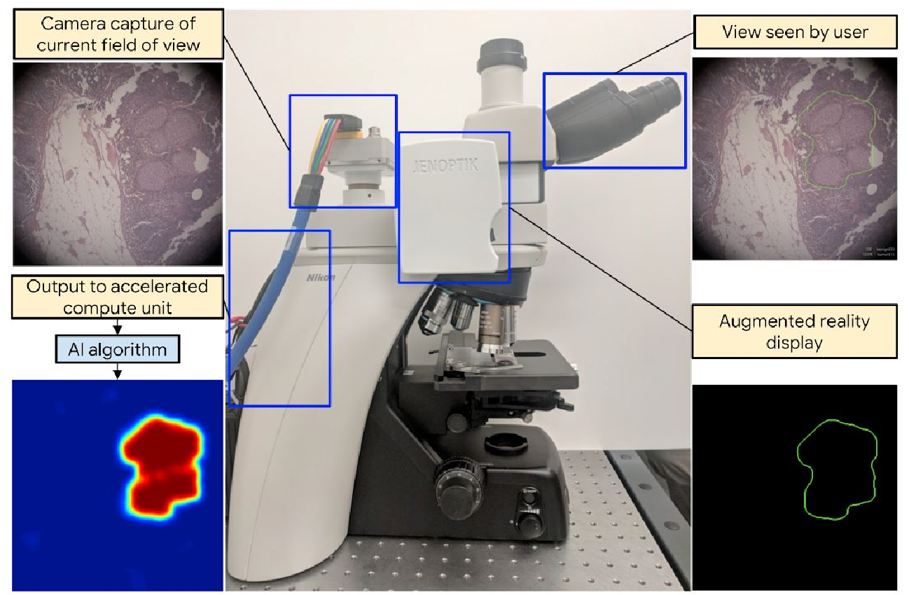 Figure 1 for Microscope 2.0: An Augmented Reality Microscope with Real-time Artificial Intelligence Integration