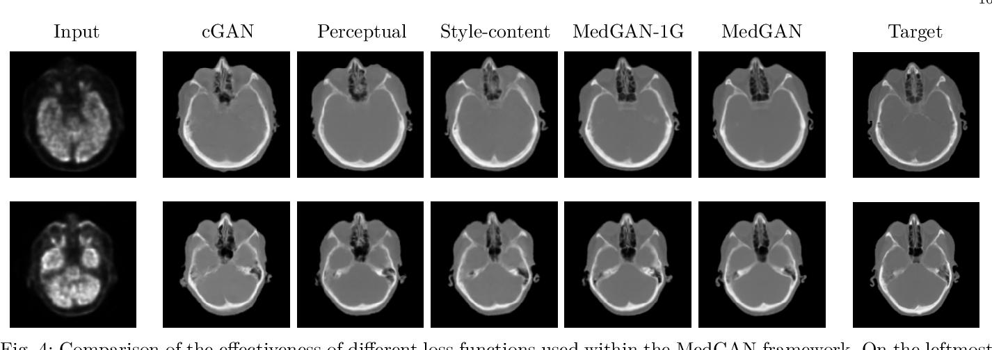 Figure 4 for MedGAN: Medical Image Translation using GANs