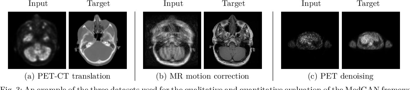Figure 3 for MedGAN: Medical Image Translation using GANs