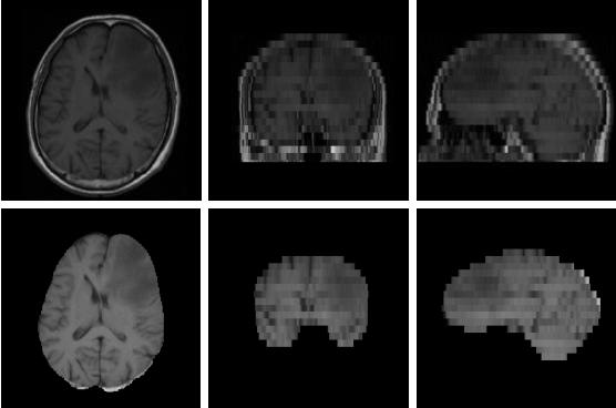 Figure 1 for Skull-stripping for Tumor-bearing Brain Images