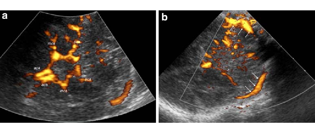 Mastoid fontanelle approach for sonographic imaging of the neonatal ...