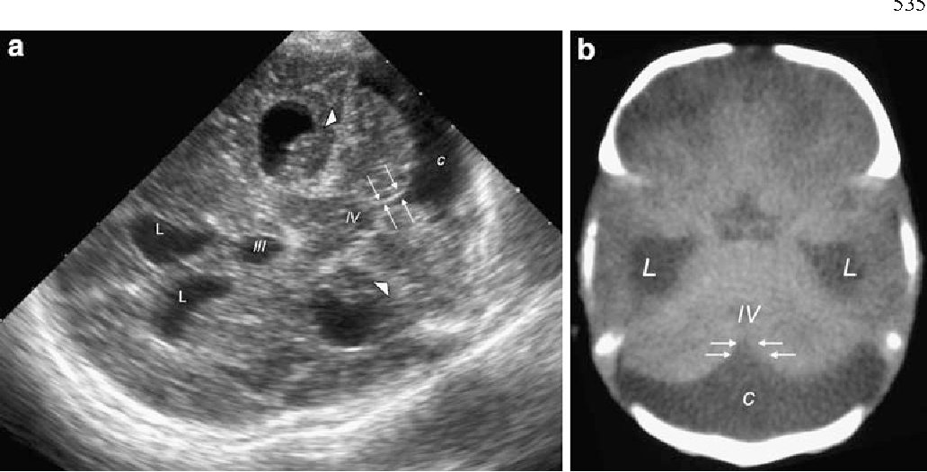 Mastoid Fontanelle Approach For Sonographic Imaging Of The Neonatal